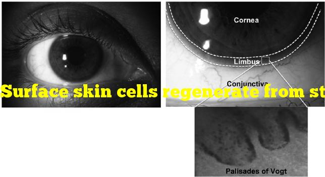 Surface skin cells regenerate from stem cells found in which specific region?