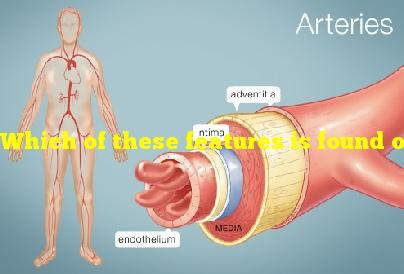 Which of these features is found only in arteries?