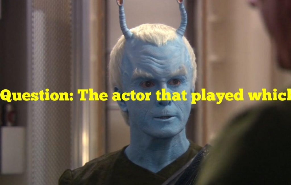 Question: The actor that played which Star Trek character only had nine fingers?
